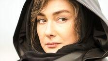 تغییر باورنکردنی هانیه توسلی بعد از عمل زیبایی   عکس هانیه توسلی
