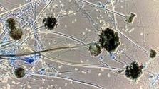 هشدار؛ قارچ سیاه به مغز حمله کند چه اتفاقی می افتد؟!